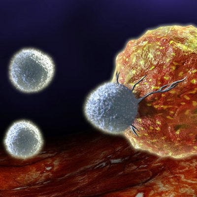 Stem Cell Therapy for Colon Cancer