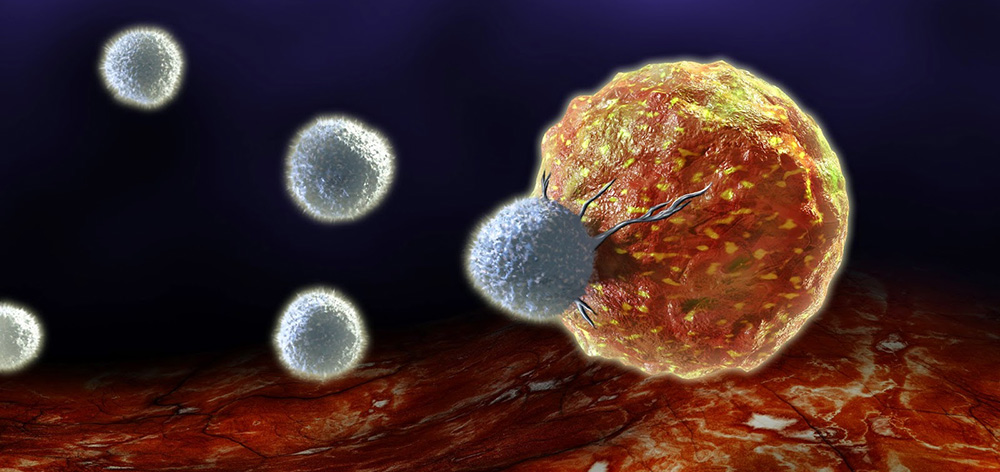 Stem Cell Therapy For Colon Cancer The Ritz Herald
