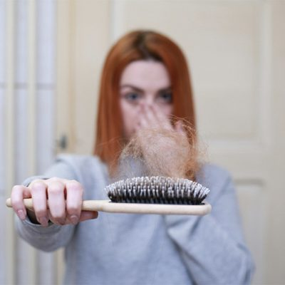 Everything About Hair Loss & DHT